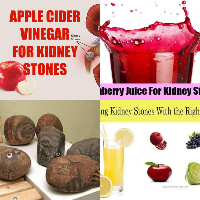 The Best Kidney Stone Home Remedy The Kidney Stone Remedy